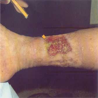 Venous leg ulcer - Treatment - NHS Choices